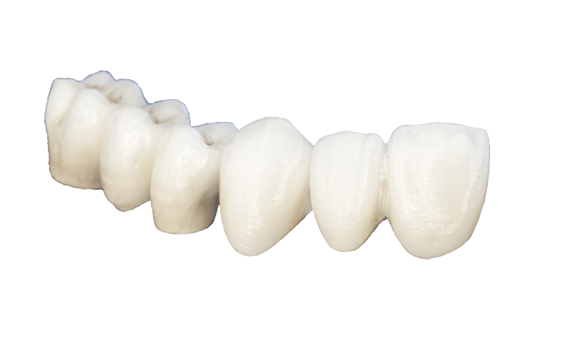 IPS E. Max Crowns